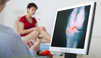 Revmatologie: Moderní léčba nejvíc pomáhá těžce nemocným