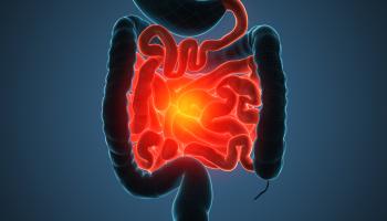 Moderní léčba snížila úmrtnost na chronické střevní záněty o desítky procent. Nejnovější léky jsou vyhrazené pro těžké případy