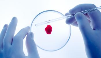 IMI 2 vyzývá k hledání účinnější léčby revma