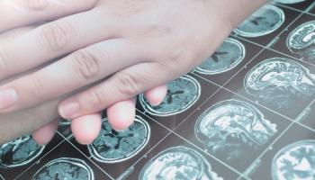 Neurologická onemocnění: Léčba se prudce vyvíjí. Mizí stigma. Pomáhají registry i projekty pacientských organizací