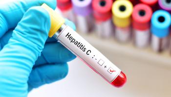 Hepatitidu C už lékaři umějí snadno vyléčit. Jen se na ni musí přijít